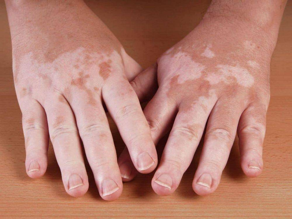 vitiligo en magnesium. Vitiligo wordt ook wel leukoderma genoemd.