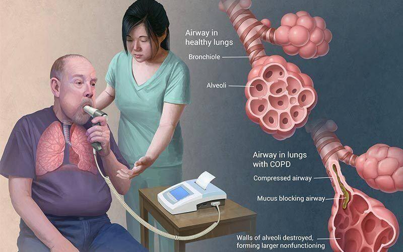 COPD en magnesium